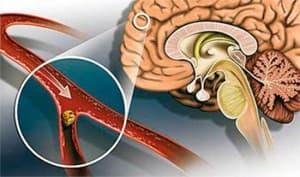 атеросколероз-сосудов-голвоного-мозга