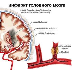 Как предупредить инфаркт головного мозга?