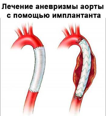 Аневризма аорты - общаяя информация, диагностика и лечение