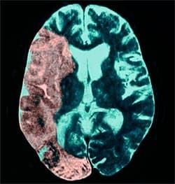 Что делать при обширном инсульте? Осложнения, первая помощь