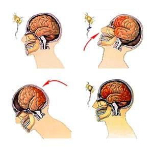 Эффективные методы лечения при сотрясении головного мозга