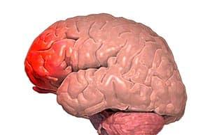 Ушиб головного мозга – последствия без нужного лечения