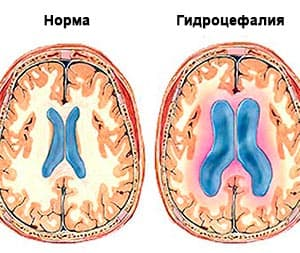 Водянка головного мозга. Победить болезнь можно!
