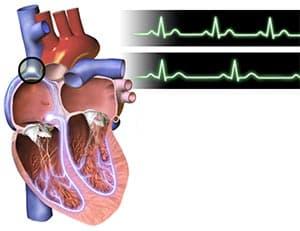 Синусовая тахикардия - когда частит сердце