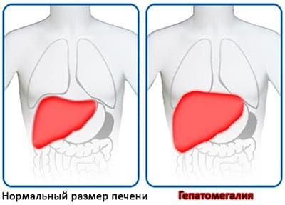 Гепатомегалия печени – причина серьезной болезни!