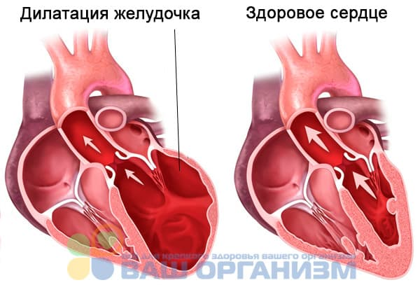 Дилатация всех камер сердца