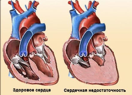 Хроническая сердечная недостаточность - срочно к врачу!