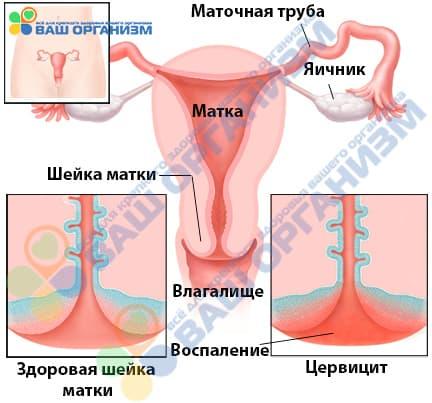 Воспаление шейки матки или цервицит - Рисунок