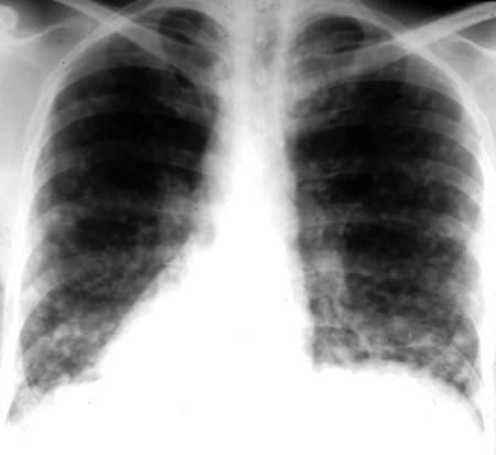 Гистоплазмоз Острый диссеминированный рентген фото