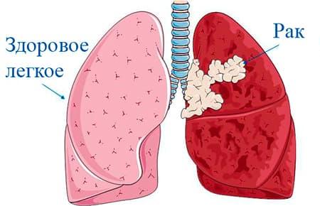Рак легких: описание, симптомы, когда обратиться к