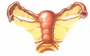 гипоплазия матки - рисунок