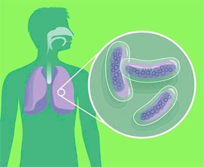 туберкулез легких рисунок