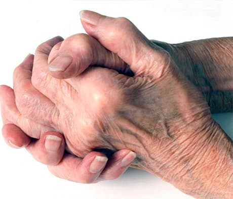 Ювенильный ревматоидный артрит - патология мелких суставов