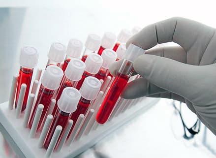 Ревматоидный артрит анализ крови фото