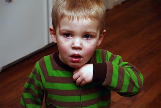 Что делать если у вашего ребенка аллергический кашель?