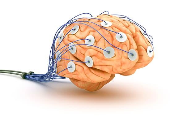 ЕЕГ головного мозга - изображение