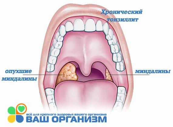 хронический тонзиллит запах изо рта