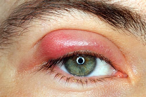 Ячмень на глазу серьезное заболевание требующее срочного лечения