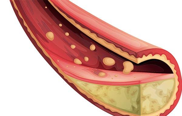 высокий холестерин у женщин это сколько