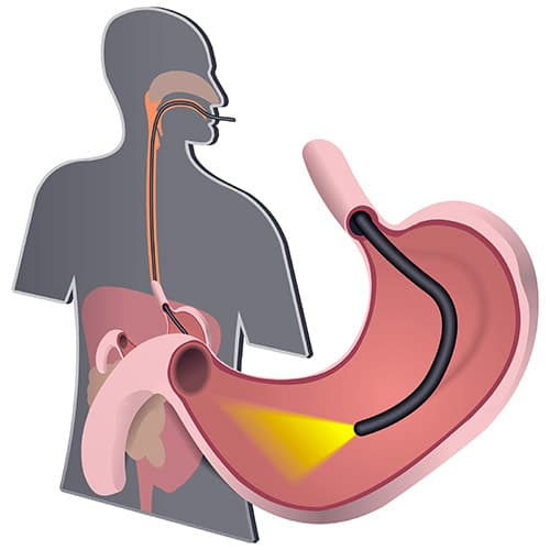 Эффективное лечение и правильная диагностика грыжи пищевода