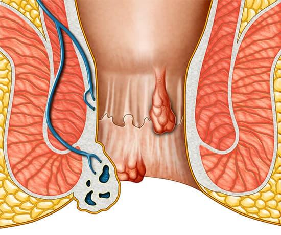 Боль в анальном отверстии кровь при дефекации