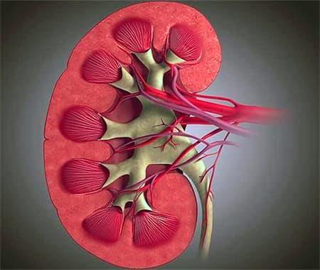 Хронический гломерулонефрит бывает четырех форм: лечить срочно!