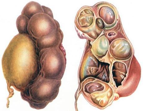 Методы борьбы с гидронефрозом почек у новорожденных
