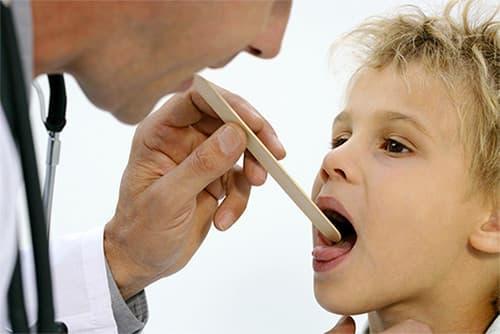 Чем лечить стоматит у ребенка: вылечим любую из 5 форм