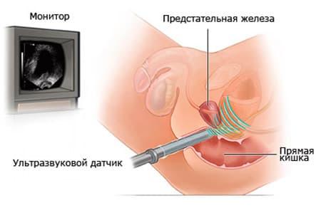 Лучевая терапия при раке предстательной железы стоимость
