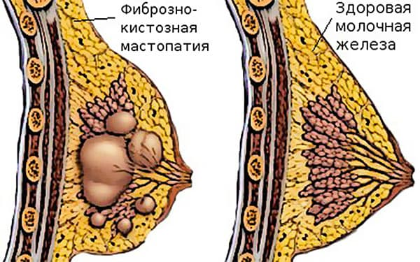 на рисунке здоровая и больная молочные железы
