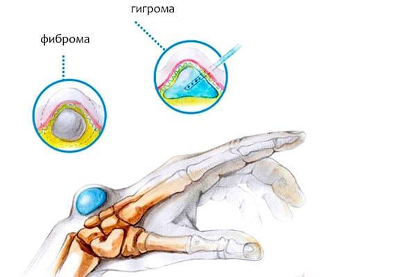 Чем опасна грыжа на руке? Как её лечить и правильно диагностировать
