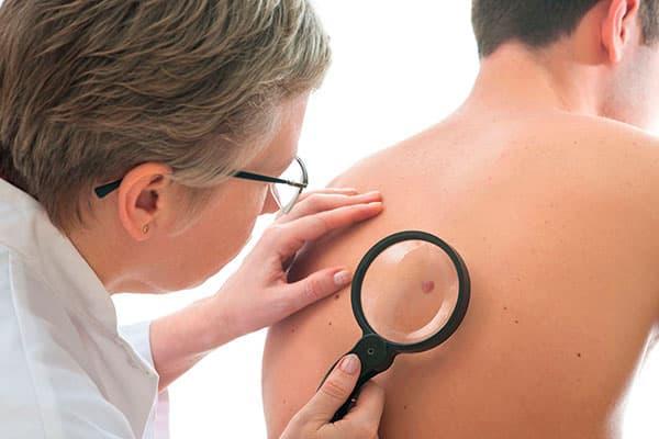 Причины появления и методы удаления дерматофибромы
