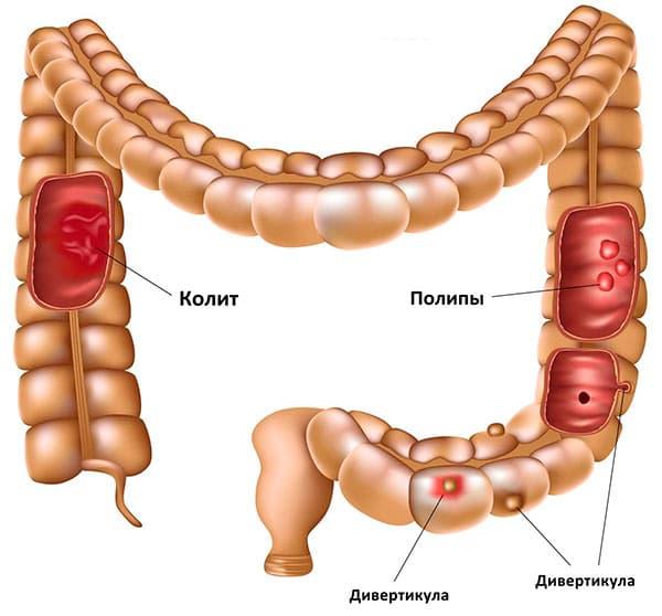 Дивертикулез толстой кишки: проявления, лечение, диеты