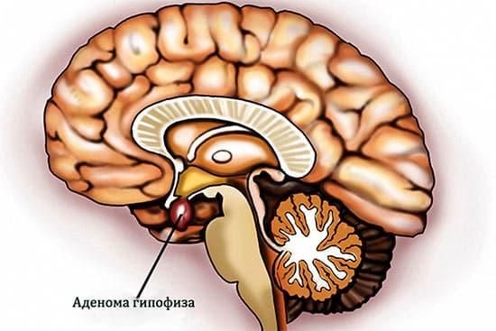 Болезнь и синдром Иценко-Кушинга. Причины заболевания и методы лечения
