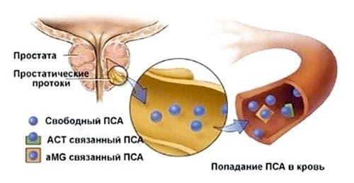 Классификация коэффициентов анализа ПСА при простатите