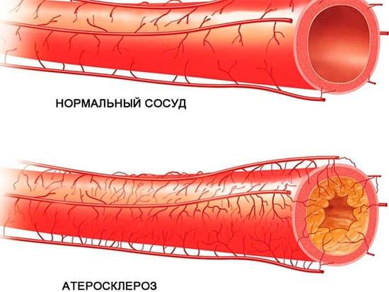 Атеросклероз нижних конечностей. Лечение фитотерапией, диетами, методы профилактики