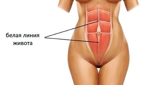 Как проводится операция по удалению грыжи белой линии живота?