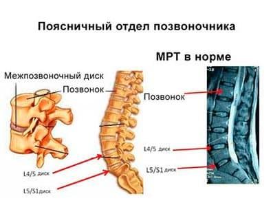 Лечение межпозвоночных грыж в пояснично крестцовом отделе позвоночника