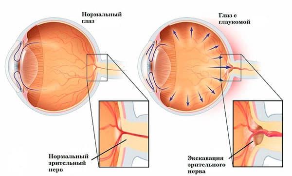 Основные симптомы глаукомы на ранних стадиях. Что нужно знать?