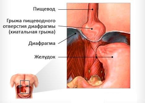 Время - главный враг при лечении диафрагмальной грыжи у новорожденного
