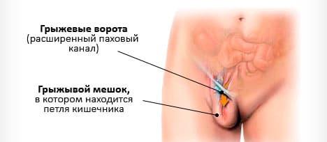 Грыжа кишечника у женщин: особенности, лечение, профилактика