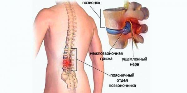 Грыжа крестцового отдела позвоночника как лечить