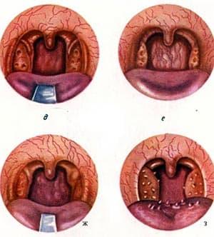 Эффективное лечение гнойной ангины у ребенка различных видов