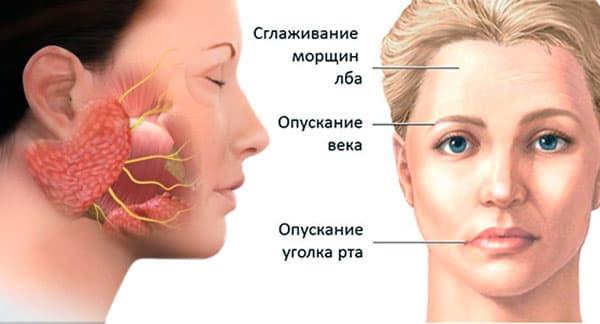 Можно ли вылечить неврит лицевого нерва без операции?
