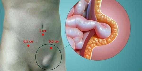 Восстановление потенции после лечения простатита
