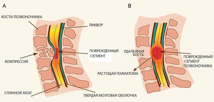 Методики лечения компрессионного перелома позвоночника в разных отделах