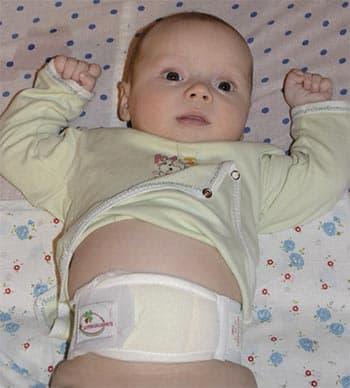 Выбираем бандаж от пупочной грыжи для вашего грудничка