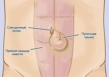 Современные методы лечения пупковой грыжи у мужчин