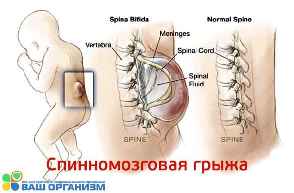 Лекарства и алкоголь во время беременности могут вызвать спинномозговую грыжу