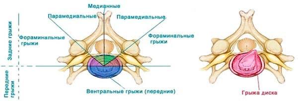 Современные методы лечения межпозвоночных фораминальных грыж